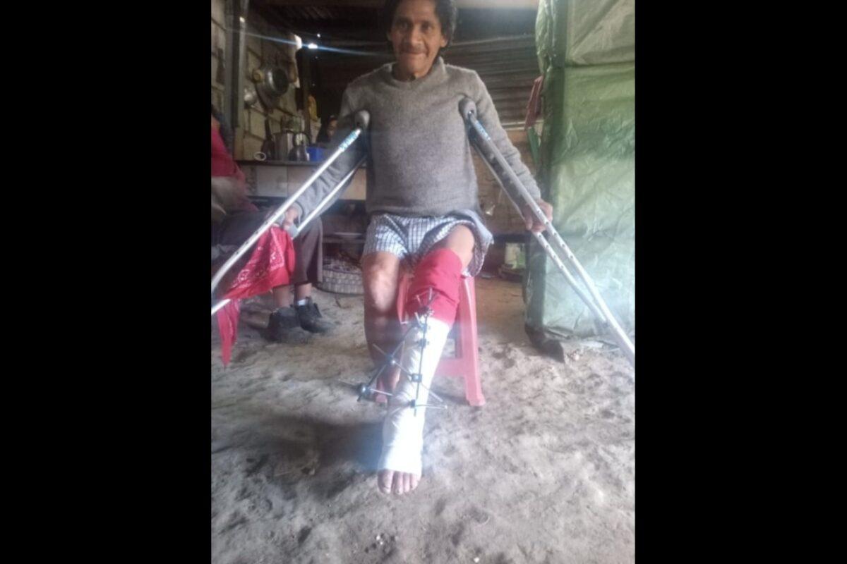 Hombre necesita apoyo con recursos para someterse a operación